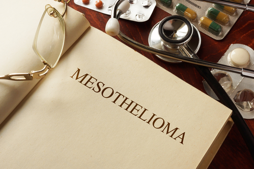 What Is Mesothelioma Mesothelioma Lawyer
