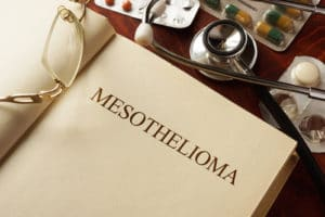 Your Legal Rights After a Mesothelioma Diagnosis